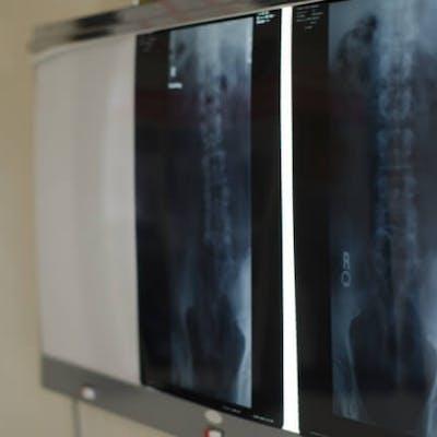求人数が少なく募集を早く察知することが必要な放射線科医師